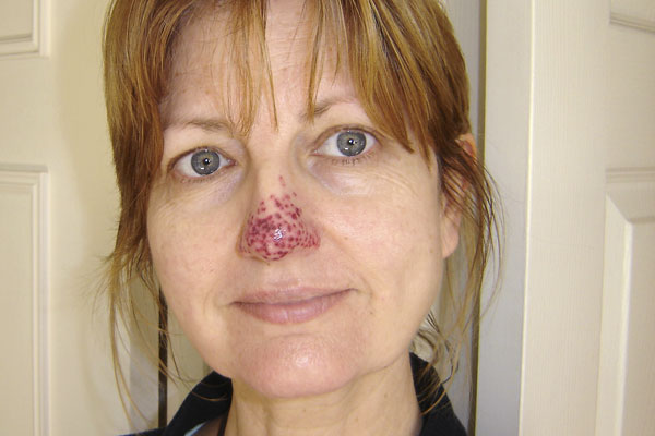 Inflammation after laser treatment