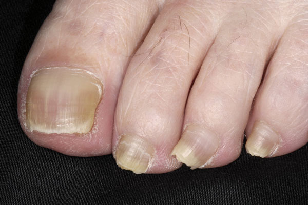 Toenails with lichen planus