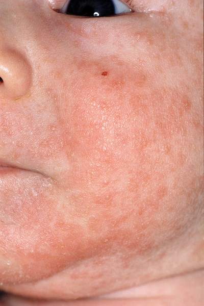 Seborrheic dermatitis is caused by overactive sebaceous glands.