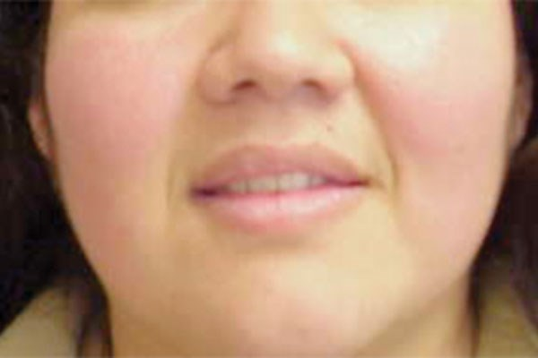 Rosacea Linked to Increased Risk of Alzheimer's Dementia