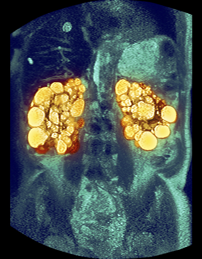 Adult Polycystic Kidney Disease Management The Clinical