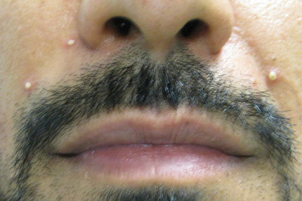 Pustular facial eruptions