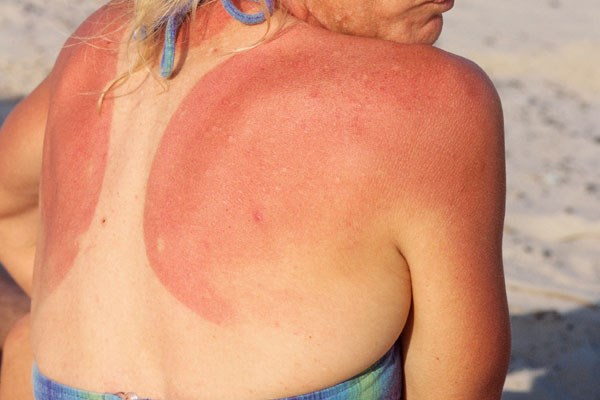 Shaving cream for a sunburn?