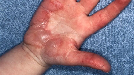 Clinical Guidance: Evaluation and Treatment of Minor Burns