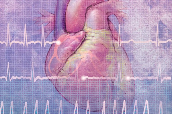New atrial fibrillation guidelines simplify primary care treatment