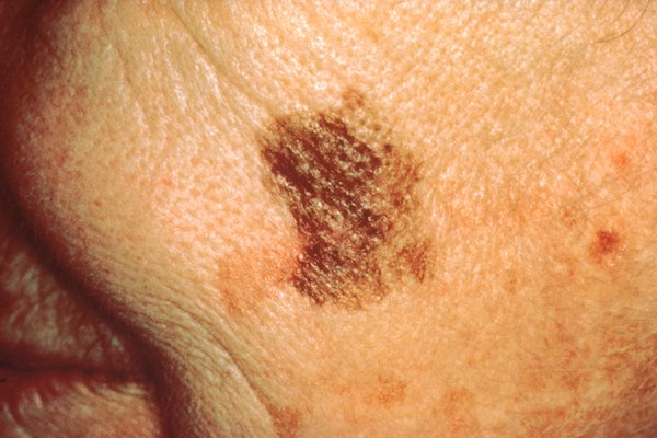 Skin cancer over- and under-recognized