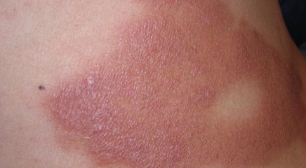 Burning rash spreads from the trunk to the rest of the body