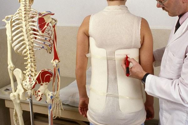 Scoliosis Screening in Schools Effective