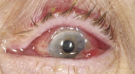 Conjunctivitis can be caused by allergy, by bacterial or viral infection or by physical or chemical