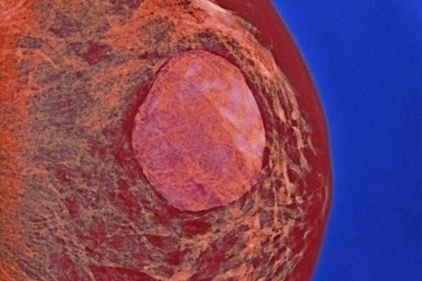 A breast cyst (center) can arise from the blockage of a duct in glandular tissue.