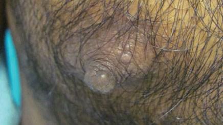 Yellow papules near the nipple