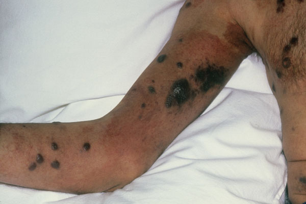HIV/AIDS-related skin conditions