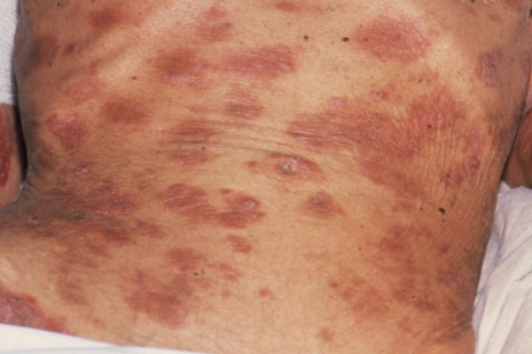 Hiv Patient Symptoms