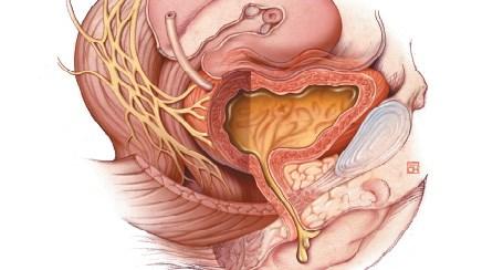 Urine leakage can be caused by weakened pelvic-floor muscles.