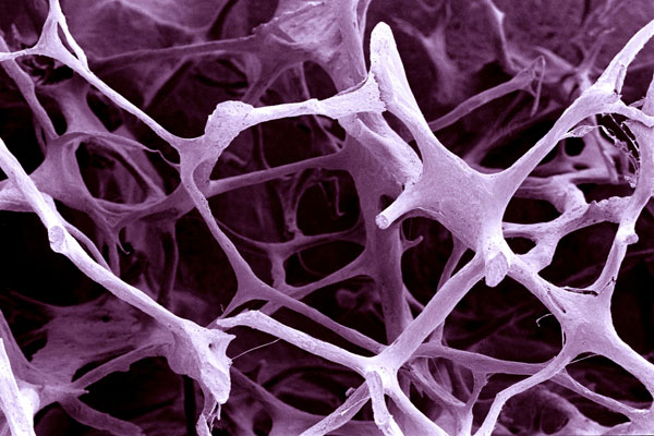 Comparative Studies Lacking for Osteoporosis Drugs