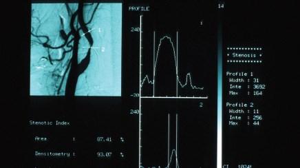 USPSTF: Carotid screening overused