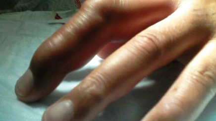 a simple case of cellulitis on the third finger is a lot more the