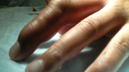 A simple case of cellulitis on the third finger is a lot more