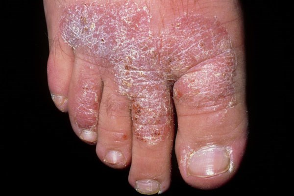 West Nile virus can resemble psoriasis