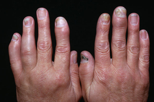 Screening tools aid in psoriatic arthritis diagnosis