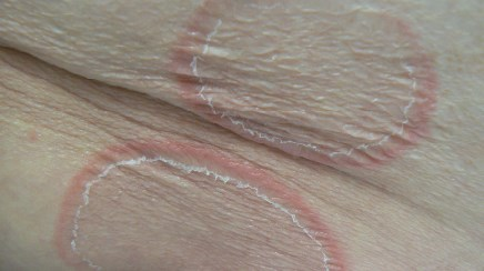 Trunk rashes with central clearing