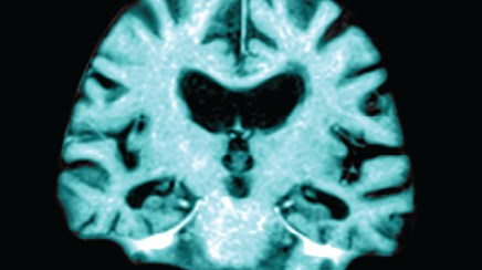 MRI Brain Scan May Predict Future Memory Loss