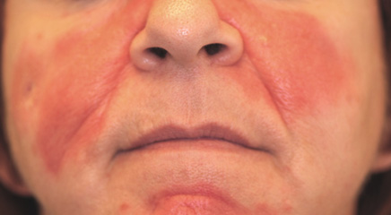 аллергия на пенициллиновую группу