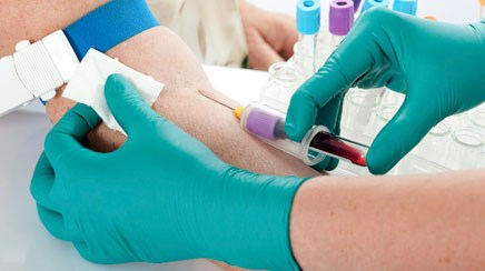 Tips for interpreting elevated hepatic enzymes