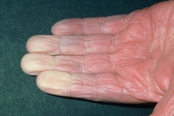 Recognizing Systemic Lupus Erythematosus