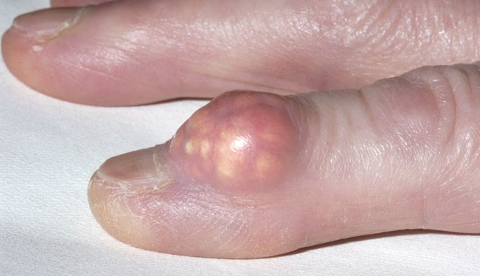 New guidelines issued for gout management
