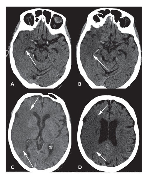 Identifying Clinical Signs of Recanalization in Stroke