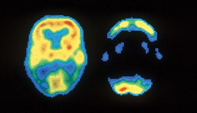 Imaging guidelines issued for Alzheimer disease