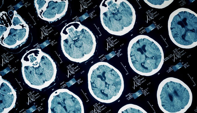 Patients with more efficient brain network connectivity had worse long-term outcomes after cognitive-behavioral therapy.