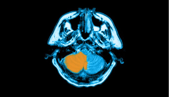 Recent infection boosts pediatric stroke risk