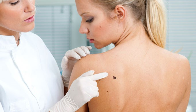 Patients with fewer moles had thicker, more aggressive melanoma.