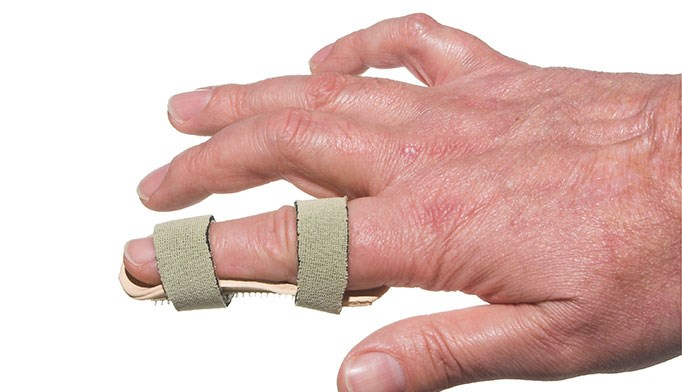 Get a grip on dislocated fingers