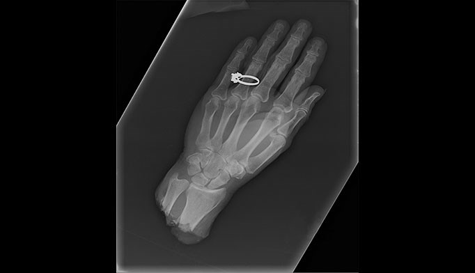 Accidental hand ­amputation requires ­extensive surgery