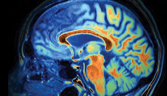 Celexa cuts Alzheimer's agitation, but safety questionable