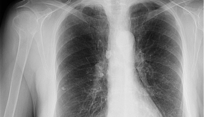 USPSTF: Screen high-risk adults for lung cancer