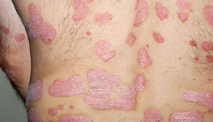 Obesity may precede pediatric psoriasis onset