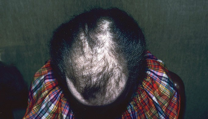 The most common causes of hair loss among women