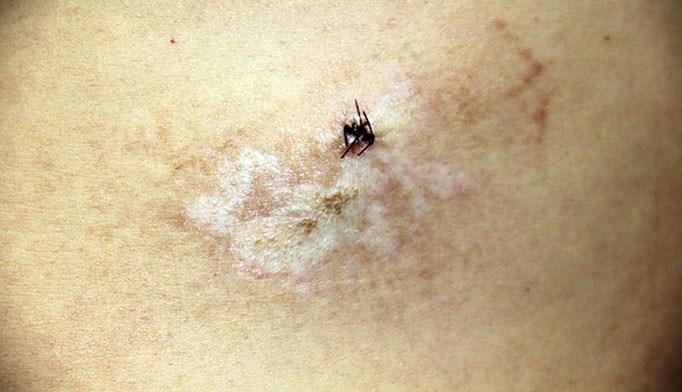October 2013 Dermatology CME