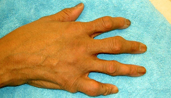Gout management in patients with CKD