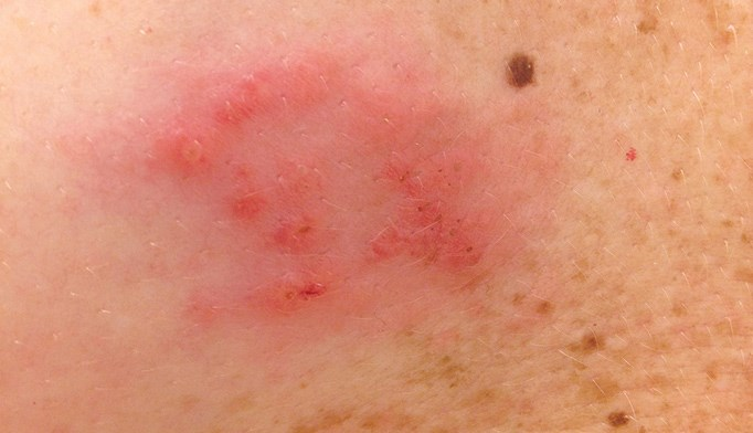 Psoriasis biologics may up herpes zoster risk