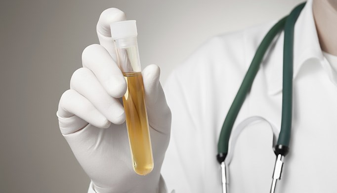 Method evaluating cells collected from urine shows 94% diagnostic accuracy.