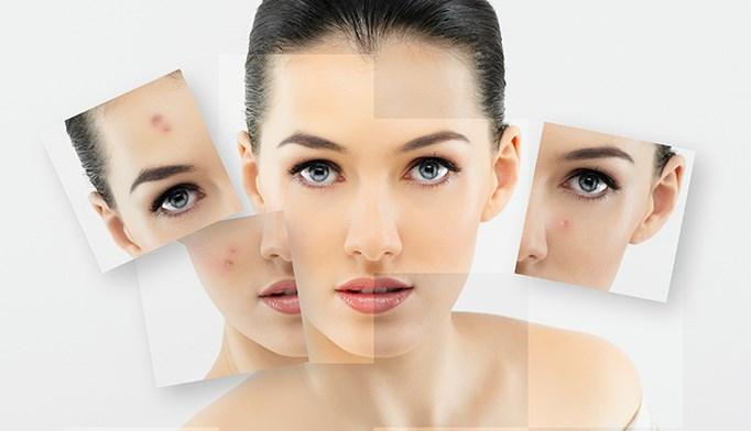 Minimally invasive acne Tx effective short term