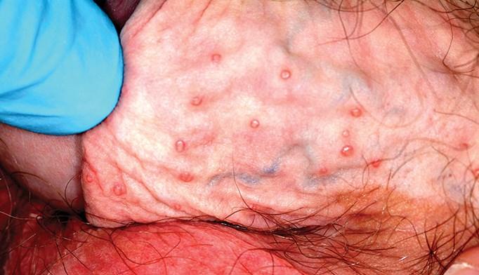 January 2014 Dermatology CME/CE