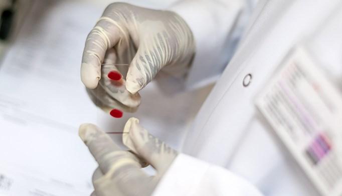 Achieving SVR reduces hep C treatment costs