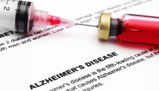 Image result for blood test for alzheimers