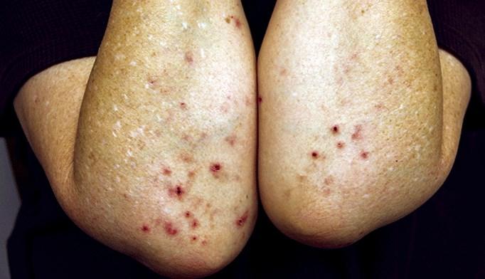 April 2014 Dermatology CME/CE